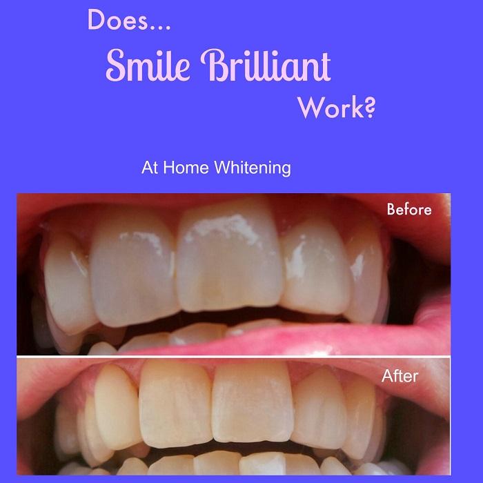 Does Smile Brilliant Work