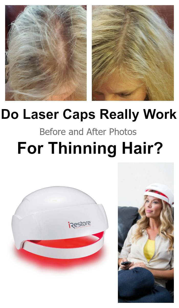 Does Irestore Work for Women Before After Pictures Laser Cap Therapy laser caps really work for thinning hair