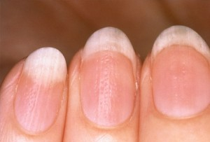 Dry-Brittle-Nails