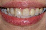 yellow teeth