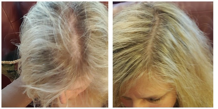 Before After Photos Women iRestore LLLT Helmet Results
