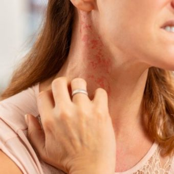 Understanding the Treatment Ladder for Moderate-to-Severe Atopic Dermatitis woman scratching